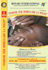 San Giovanni Rotondo NET - End Polio Now